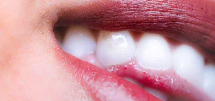 Il test muscolare odontoiatrico in kinesiologia